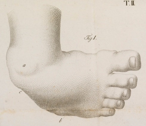 L0066938 Illustration showing treatment of a clubfoot Credit: Wellcome Library, London. Wellcome Images images@wellcome.ac.uk http://wellcomeimages.org Illustration showing treatment of a clubfoot 1806 Memoria chirurgica sui piedi torti congeniti dei fanciulli, e sulla maniera di correggere questa deformità / Antonio Scarpa Published: 1806. Copyrighted work available under Creative Commons Attribution only licence CC BY 4.0 http://creativecommons.org/licenses/by/4.0/
